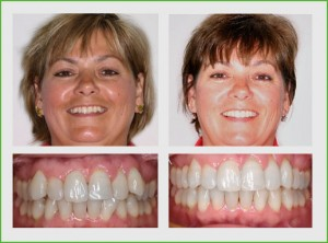 In only seventeen months wearing Invisalign braces this patient's smile was transformed