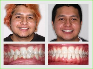 In twenty two months this patient's crowded upper and lower teeth were corrected with Invisalign treatment