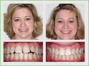 Invisalign before and after in twenty months of Invisalign treatment